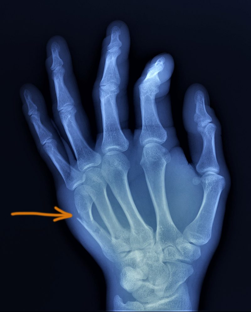 boxers fracture_298732709